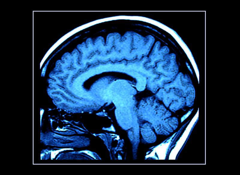 Травматическая энцефалопатия фото