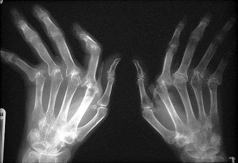 Пиогенен артрит | мкб M00