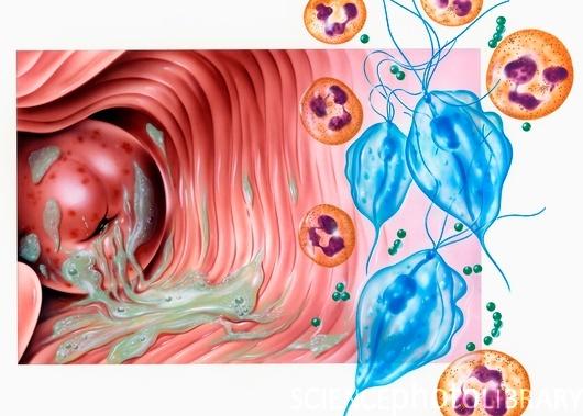 Трихомонада способна переносить в своем микроорганизме других возбудителей инфекционных заболеваний (например...