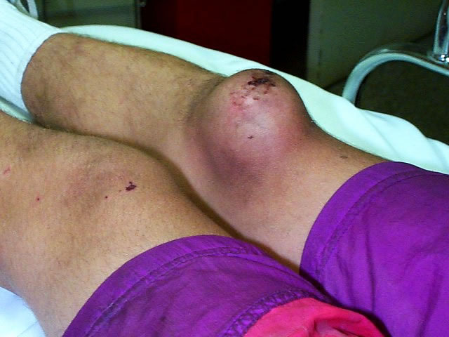 Пурпура Геноха-Шенлейна фото