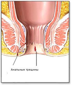 Форумы о лечении анальной трещины если