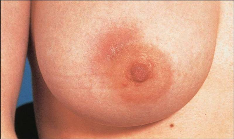 Сосок Молочной Железы фото